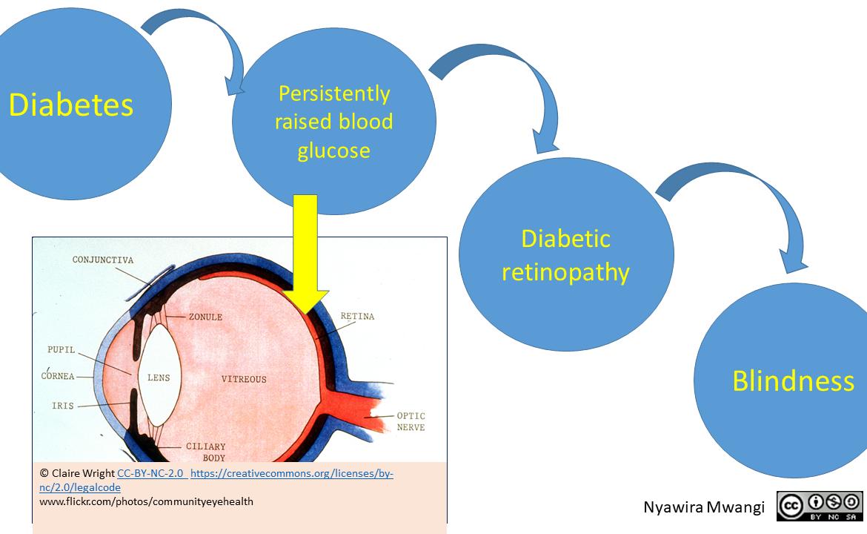 Control of Diabetic Retinopathy